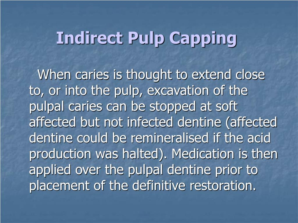 Indirect Pulp Capping