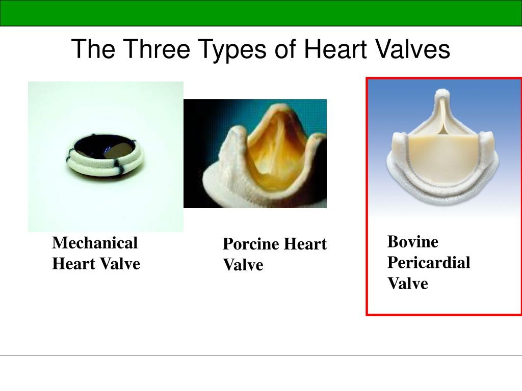 The Three Types of Heart Valves