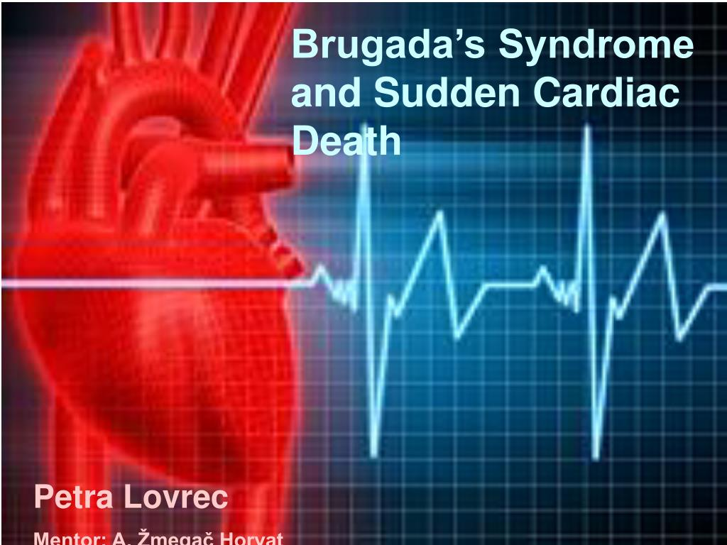 brugada s syndrome and sudden cardiac death l.