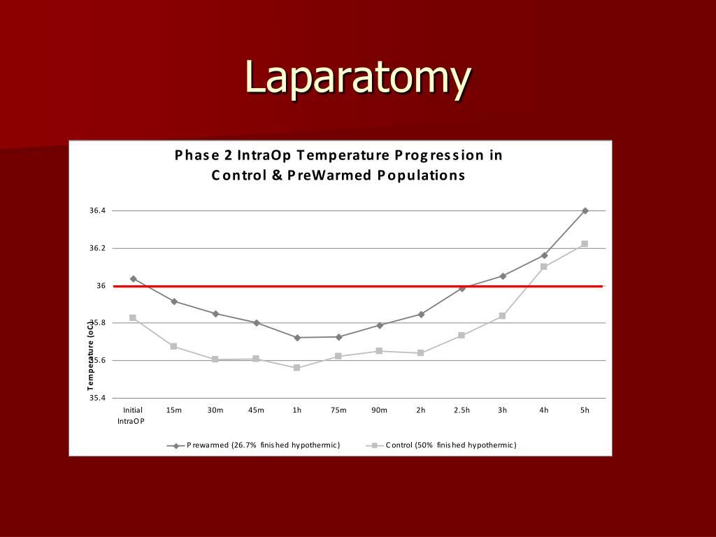 Laparatomy
