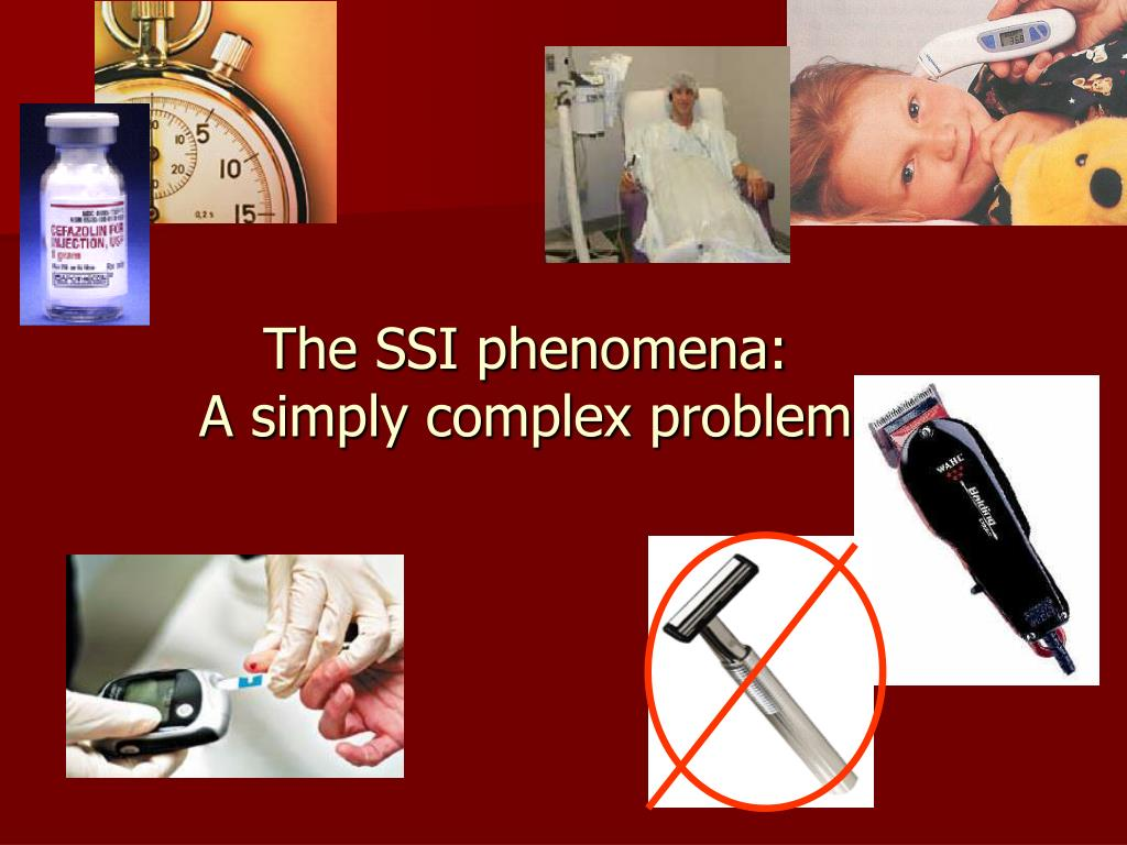 The SSI phenomena: