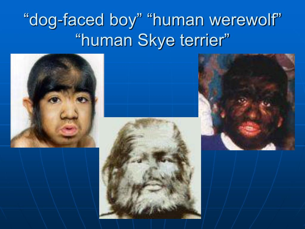"""dog-faced boy"" ""human werewolf"""