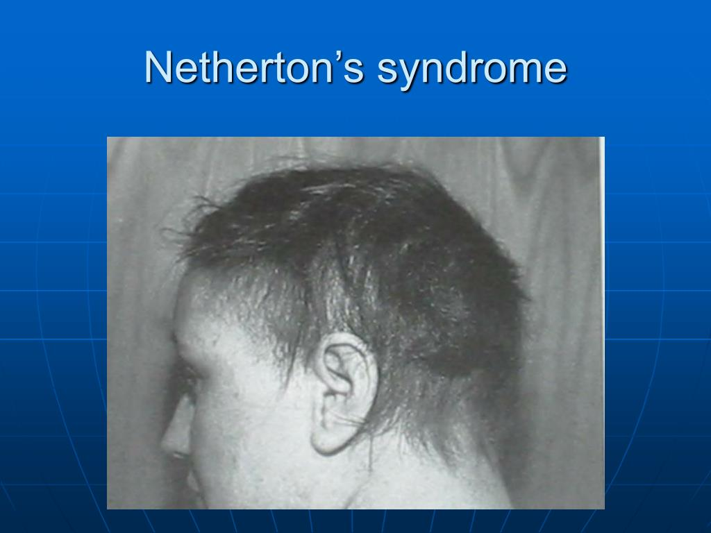 Netherton's syndrome
