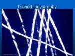 trichothiodystrophy51