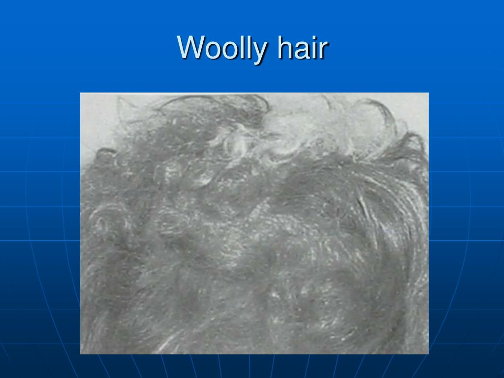 Woolly hair