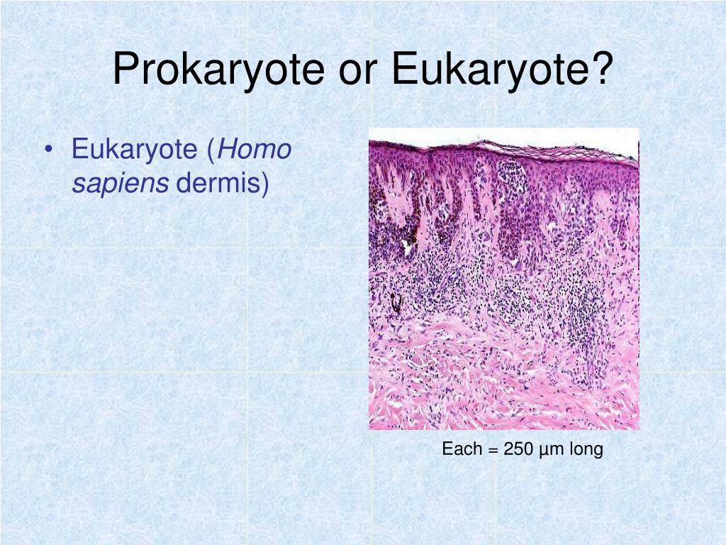 Prokaryote or Eukaryote?