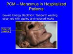 pcm marasmus in hospitalized patients
