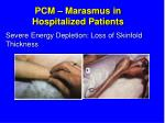 pcm marasmus in hospitalized patients36