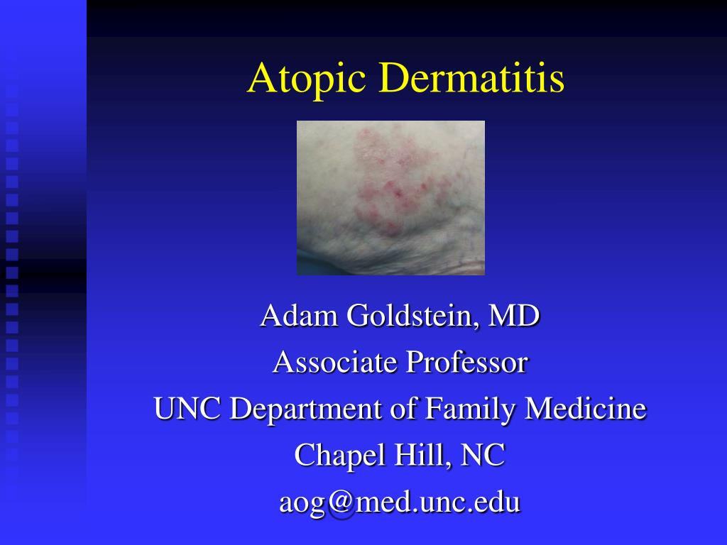 atopic dermatitis l.