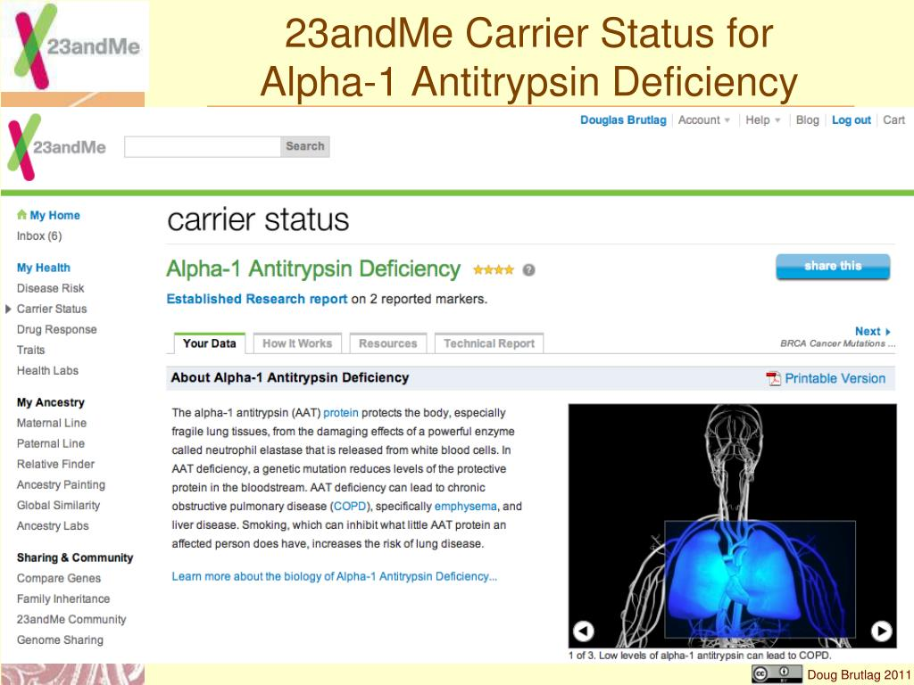 23andMe Carrier Status for