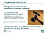 segmental vibration