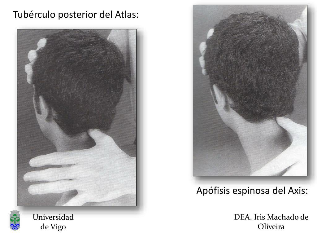 Tubérculo posterior del Atlas: