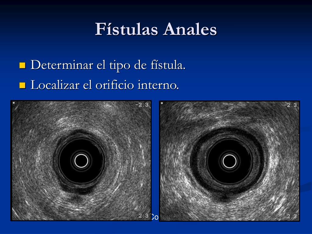 Fístulas Anales