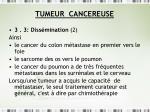tumeur cancereuse23