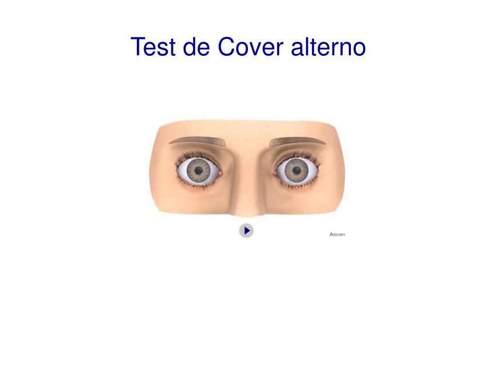 test de cover alterno l.