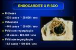 endocardite x risco