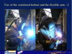 use of the ventilated helmet and the flexible arm 2