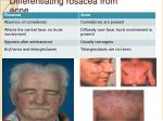 differentiating rosacea from acne