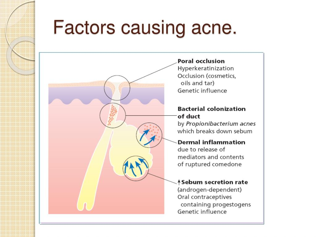 PPT - DISORDER OF SKIN APPENDAGES PowerPoint Presentation