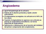 angioedema29