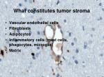 what constitutes tumor stroma
