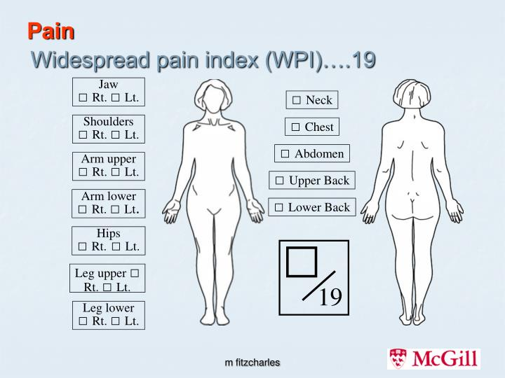 Widespread pain index wpi 19