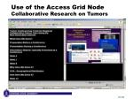 use of the access grid node collaborative research on tumors