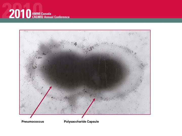 Pneumococcus