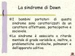 la sindrome di down1