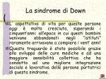 la sindrome di down2