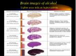 brain images of alcohol