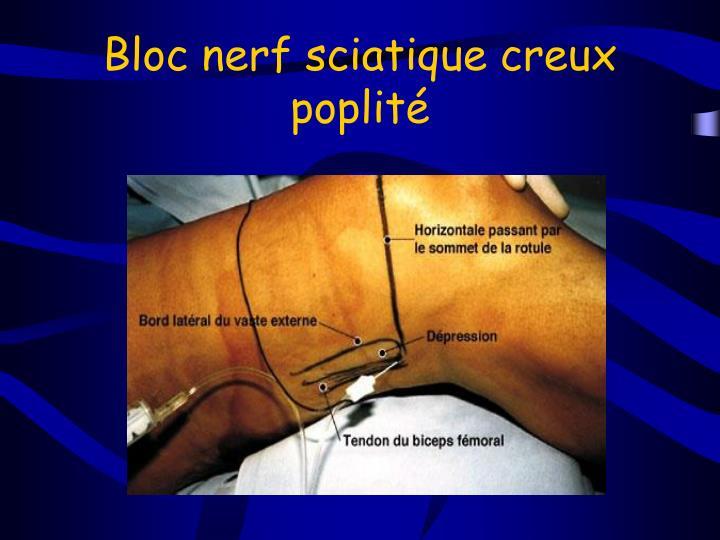 Bloc nerf sciatique creux poplité