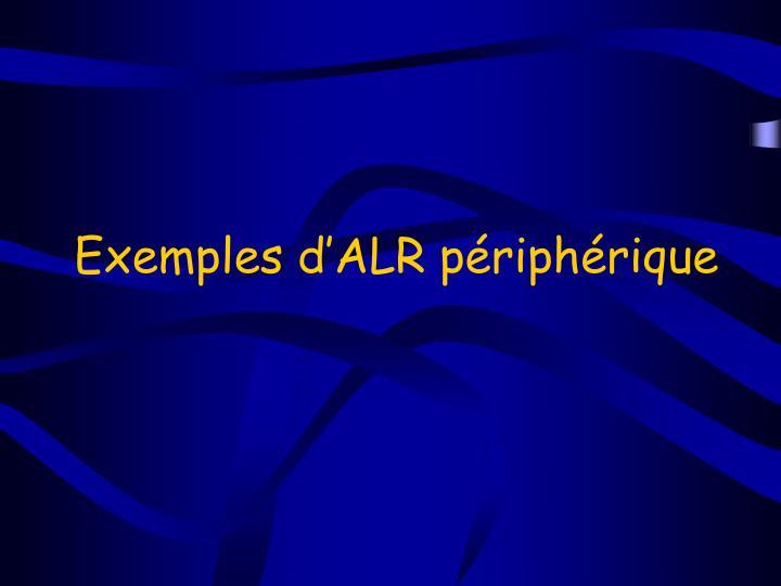 Exemples d'ALR périphérique