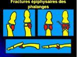 fractures piphysaires des phalanges