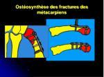 ost osynth se des fractures des m tacarpiens