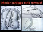 inferior cartilage strip removal