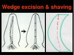 wedge excision shaving