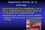 amputation distale de la phalange