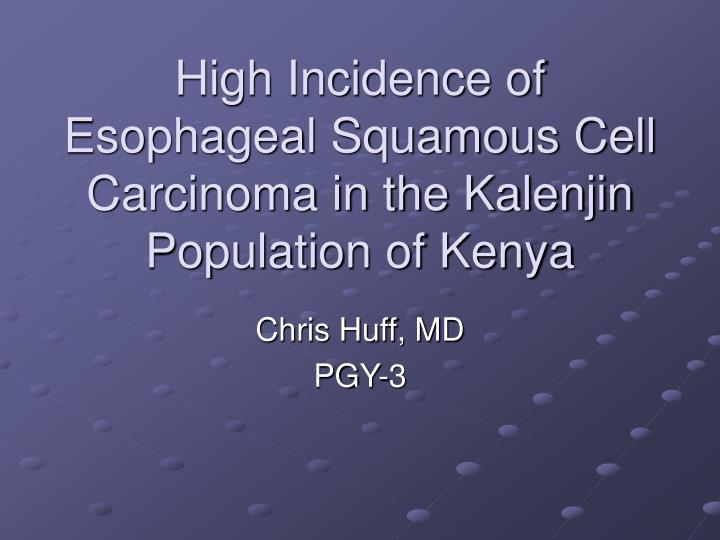 high incidence of esophageal squamous cell carcinoma in the kalenjin population of kenya n.