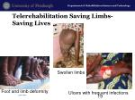 telerehabilitation saving limbs saving lives