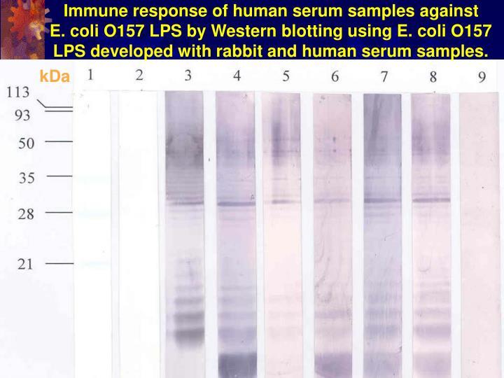 Immune response of human serum samples against