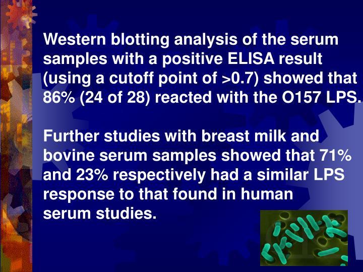 Western blotting analysis of the serum