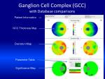 ganglion cell complex gcc with database comparisons