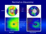 normal vs glaucoma
