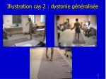 illustration cas 2 dystonie g n ralis e