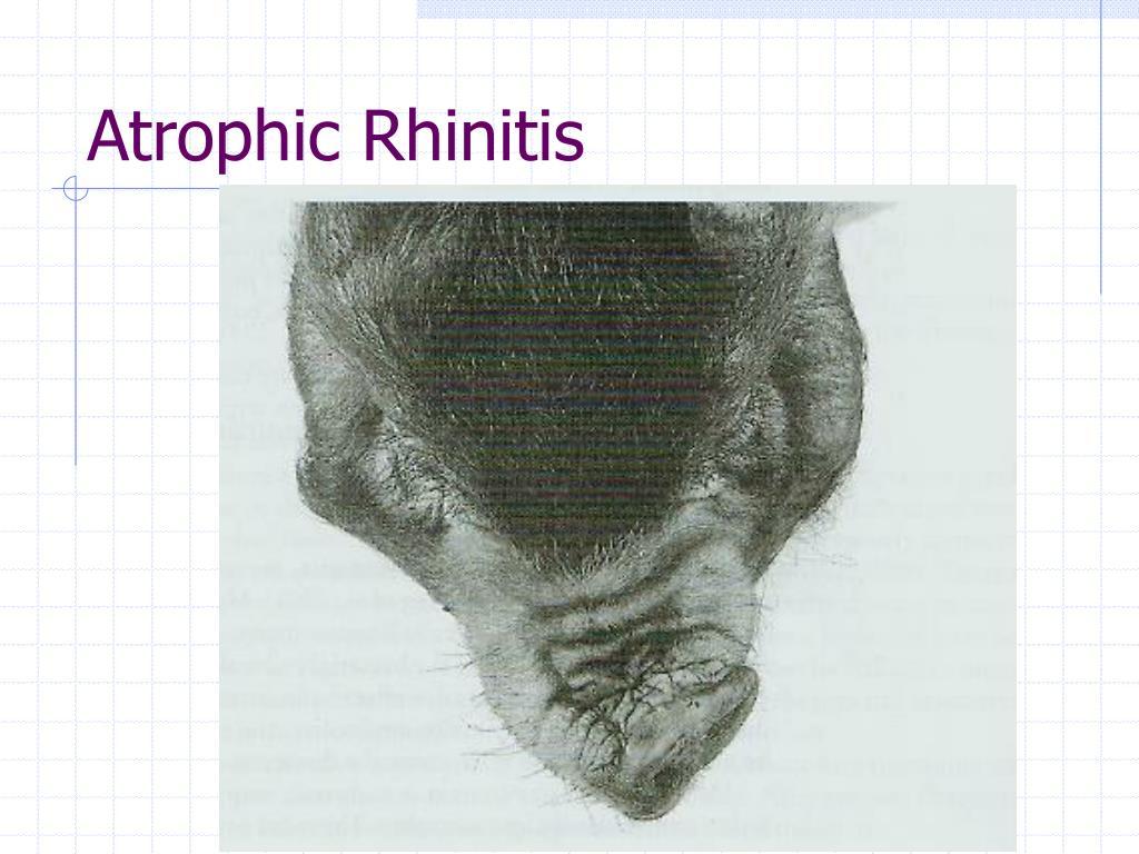 Atrophic Rhinitis