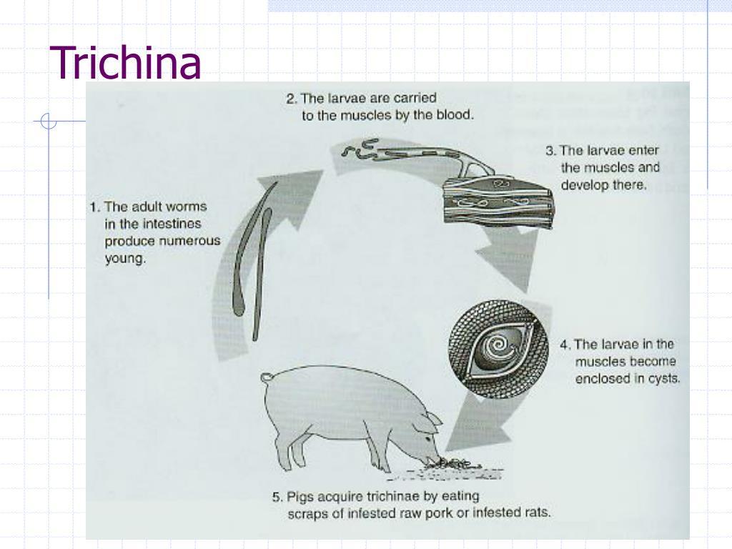Trichina