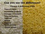 can you see the difference vitamin a deficiency vad