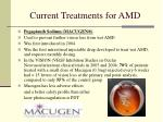 current treatments for amd2