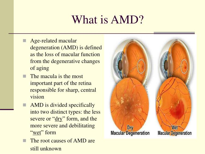 age related macular degeneration amd therapeutics market The market research analysts have predicted that with the introduction of techniques such as fluorescein angiography, the global age-related macular degeneration market will.